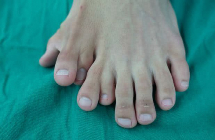 Man With 9 Toes on Single Foot Undergoes Surgery in South China