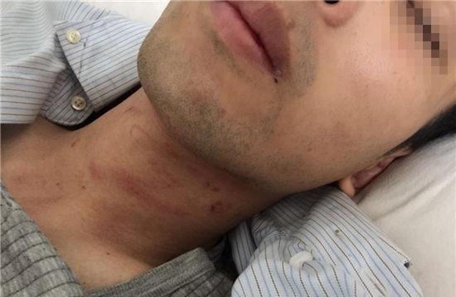 vietnam mong cai border beating injuries neck
