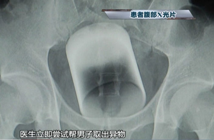 Man Gets Glass Cup Stuck in Ass in Guangzhou, Requires Surgery
