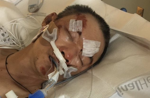 Guangdong Man Latest Victim of Asian Hate Crime in US